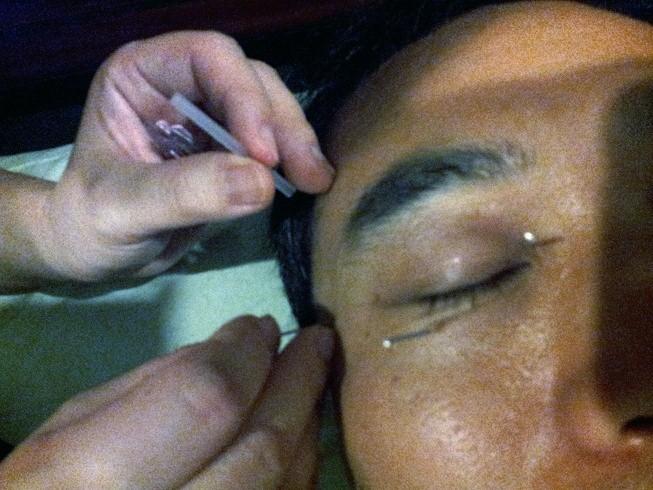 Needles around eyes
