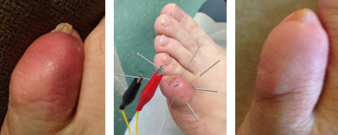 Electric Acupuncture for Traumatic Injury at Small Toe